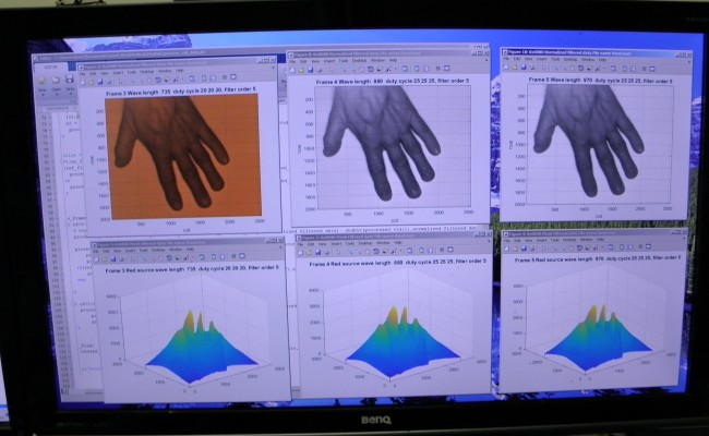Kent Imaging Hand Results